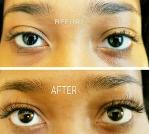 Before-After-Lash-Photo